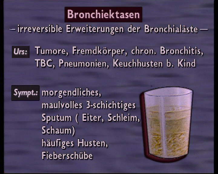 bronchiektasen