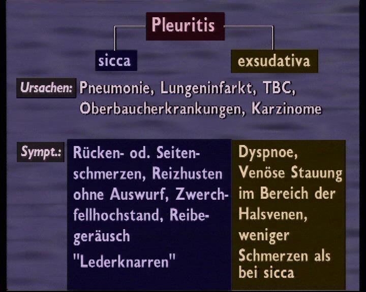 pleuritis sicca exsudativa