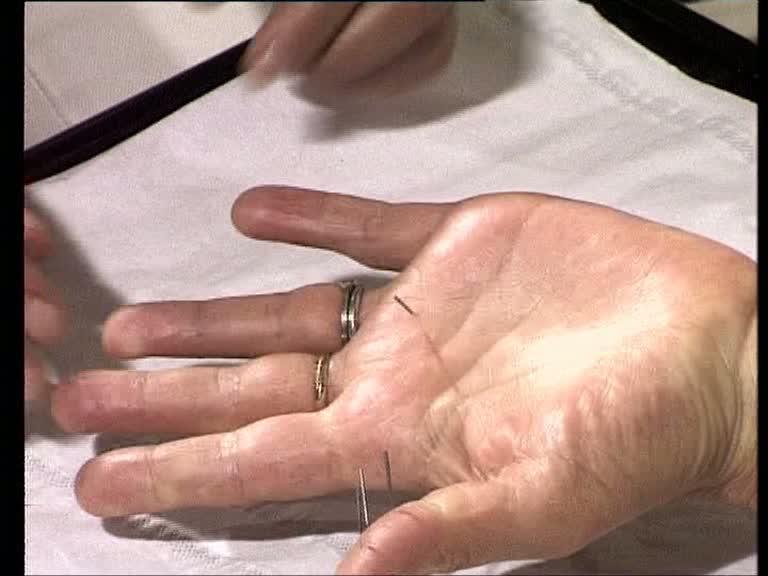 sujok-akupunktur hand nadeln
