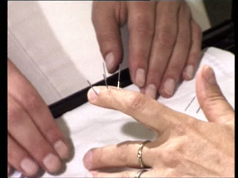 sujok-akupunktur finger nadeln