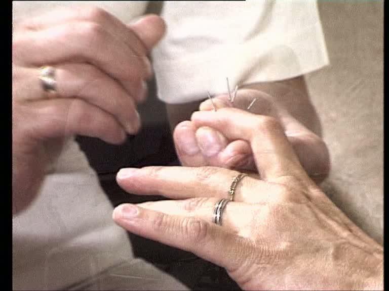 sujok-akupunktur behandlung
