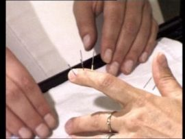 Akupunkturbehandlung vom Somatotop