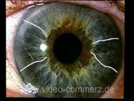 Weiterbildung in der Irisdiagnose