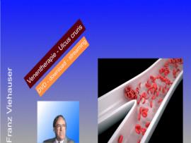 Venentherapie Ulcus Cruris