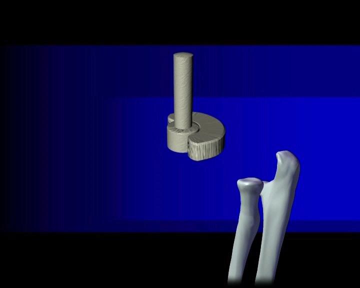 Die verschiedenen Gelenkformen sind Kugelgelenk, Scharniergelenk ...