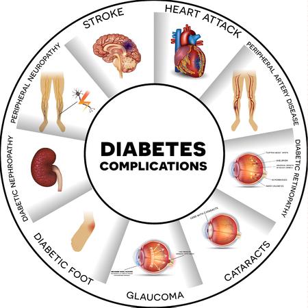 Arteriosklerose (Arterienverkalkung) | Diabetes Ratgeber
