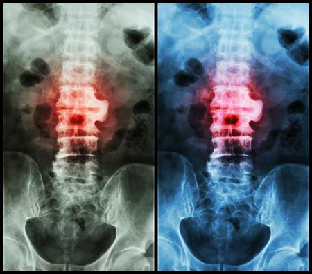 Frakturen können entweder als geschlossener Knochenbruch oder als ...