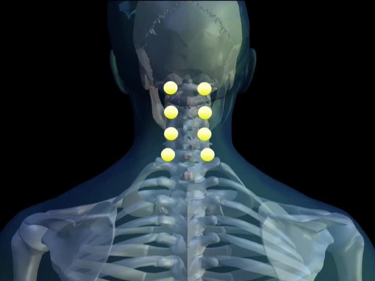 Neuraltherapie-Hautquaddel-Halswirbelsaeule