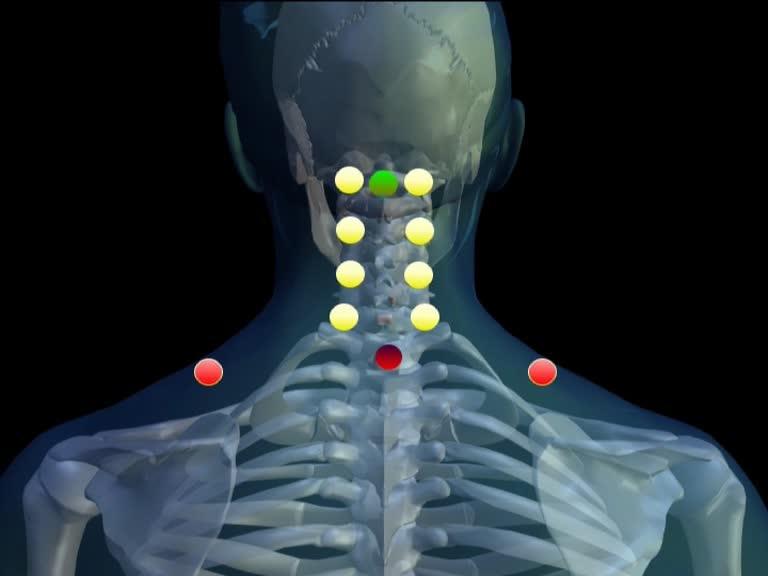 Neuraltherapie-Hautquaddel-Hinterhauptschuppe